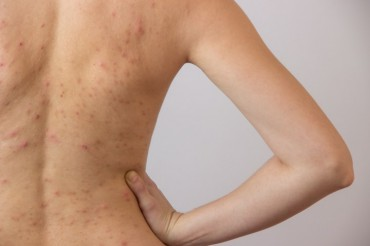 How To Get Rid Of Body Acne The Most Useful At Home Remedies
