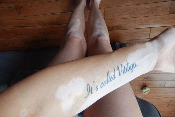Vitiligo - 1