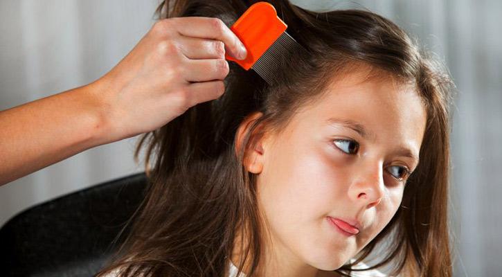 kids lice