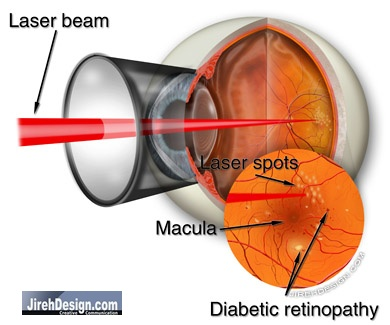 Retinal Laser Treatment 1