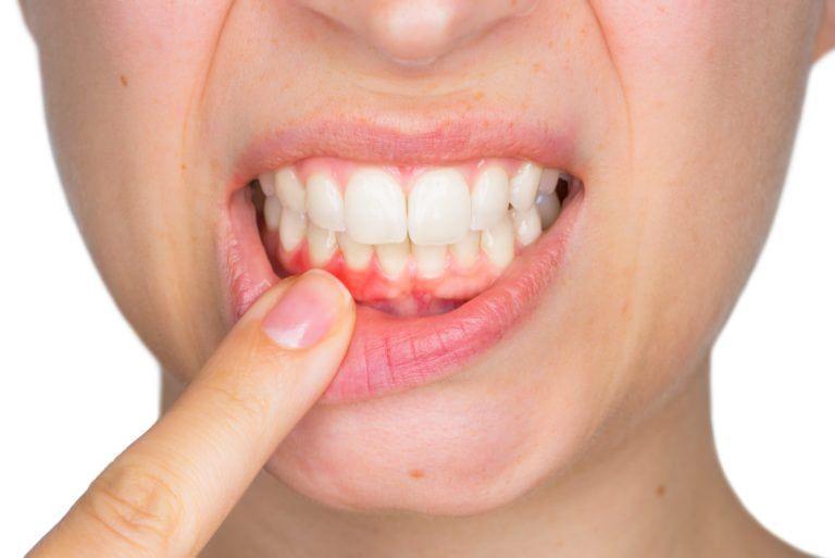 menstrual gingivitis